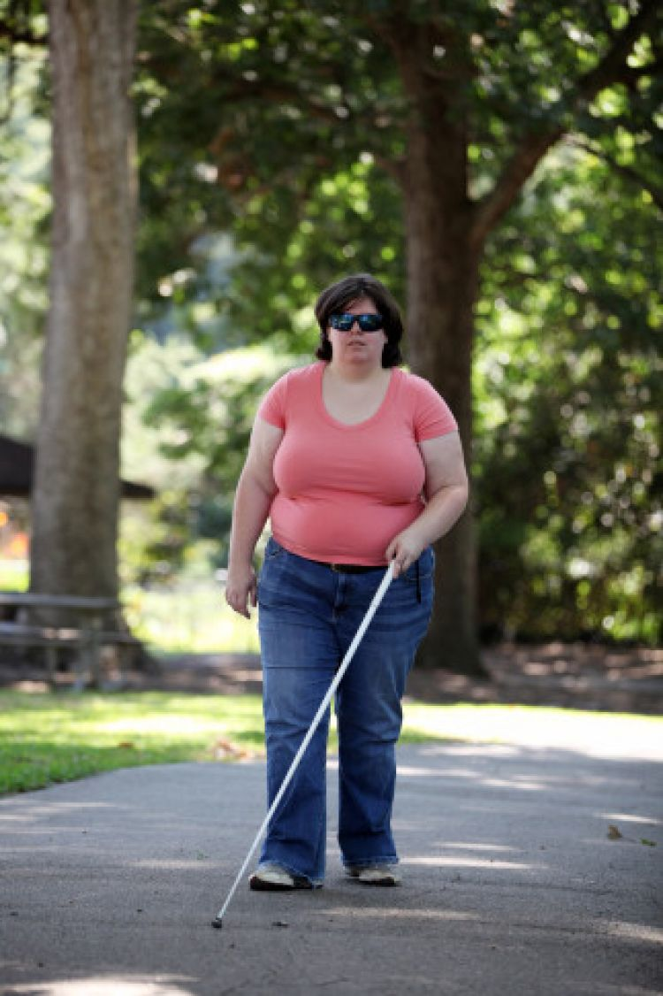 Wanita ini sengaja bikin matanya yang normal jadi buta, kelainan!