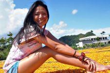 7 Negara ini diklaim penghasil 'wanita plastik' tertinggi di dunia