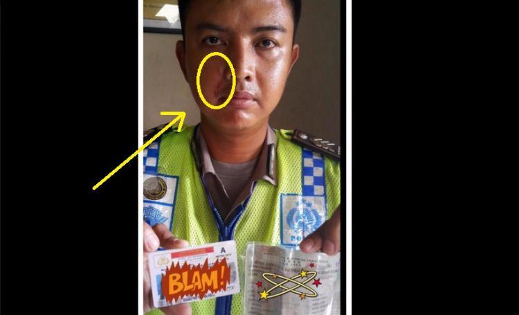 Emosi kena tilang, ibu pengemudi Pajero cakar wajah polisi