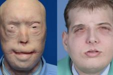Operasi wajah terluas sepanjang sejarah sukses dilakukan