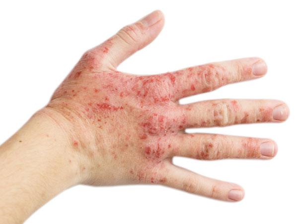 7 Penyebab tak terduga kulit kamu tiba-tiba memar, perhatikan ya!