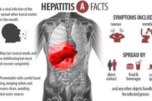10 Pencegahan penyakit hepatitis A ini wajib kamu ketahui