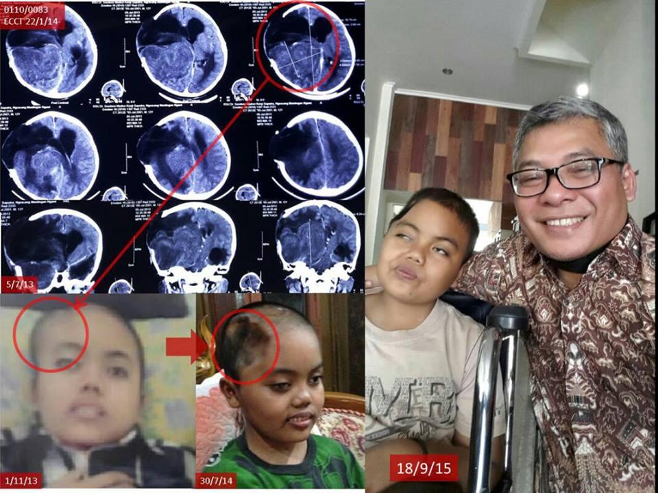 Alat terapi kankernya dilarang Kemenkes, Warsito latih medis