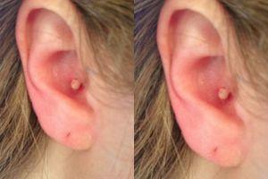 Ini alasan nggak boleh mencetin jerawat di telinga!