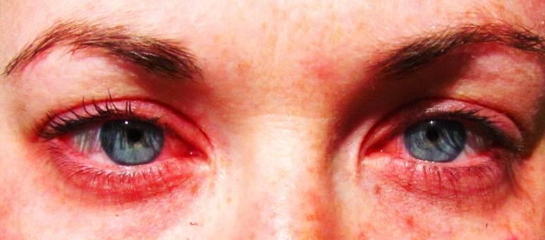 10 Beda mata merah akibat nangis & iritasi, nggak bisa bohong lagi deh