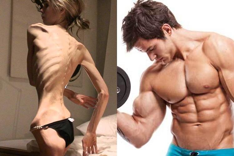 Ini gangguan makan selain anorexia, jangan tunggu dirimu mengalami!