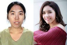 10 Before-after cewek Thailand usai operasi plastik, pangling nggak?