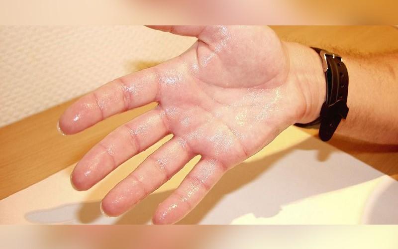 Как лечить потливость рук в домашних условиях