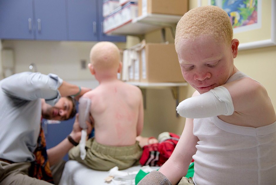 Albinos In Malawi At Risk Of Extinction Due To Witch Hunts