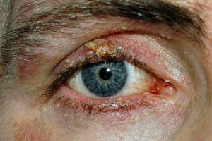 Makeup mata kadaluarsa bisa picu penyakit kanker kulit, serem!