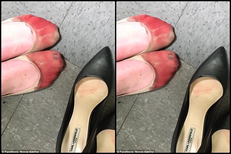 Kerja seharian pakai sepatu hak tinggi, kaki wanita ini mandi darah
