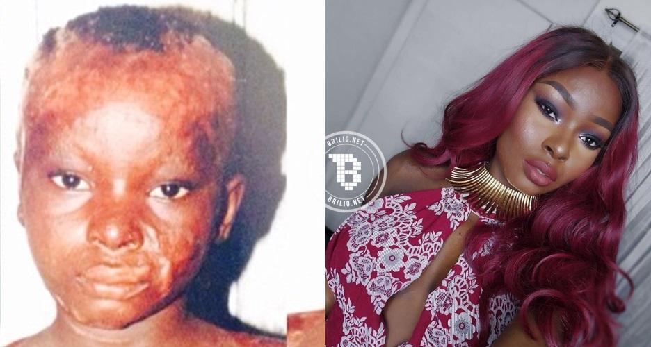 Luka bakar di seluruh wajah, wanita ini sukses jadi beauty blogger