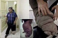 Pria ini 20 tahun hidup dengan penyakit kaki gajah, kasihan banget