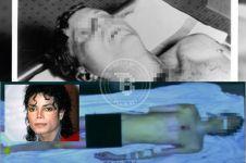 10 Foto langka pasca autopsi artis & tokoh dunia ini bikin merinding!