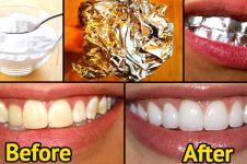 Ternyata memutihkan gigi bisa pakai aluminium foil, kamu berani coba?