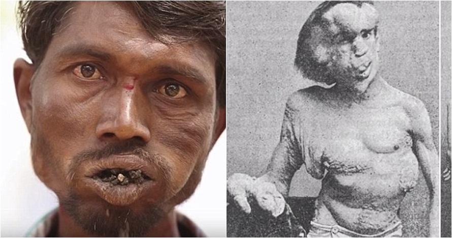 10 Penyakit paling mengerikan sedunia, dari makan tanah sampai kusta!