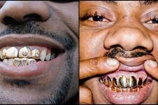 Kawat gigi udah biasa, ini lho penampilan 14 orang pakai gigi emas