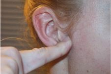 Menekan tonjolan di depan lubang telinga bisa turunkan berat badanmu!