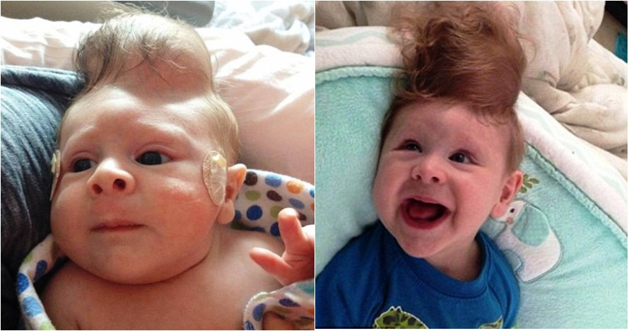Kisah bayi terlahir dengan kelainan otak ini bikin haru