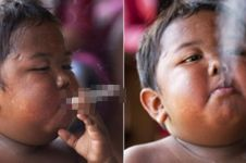 Ingat Ardi Rizal bocah perokok 40 batang/hari? Ini kondisinya sekarang