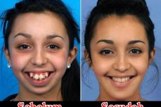 Cewek ini butuh 6 tahun operasi plastik untuk mengubah wajahnya