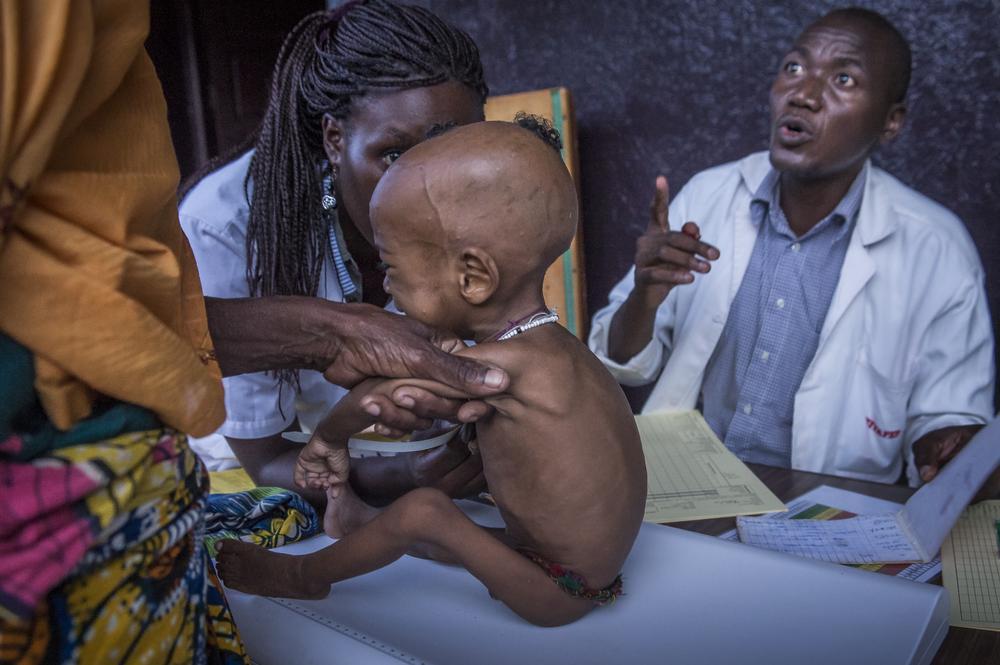anak kelaparan afrika © 2016 brilio.net