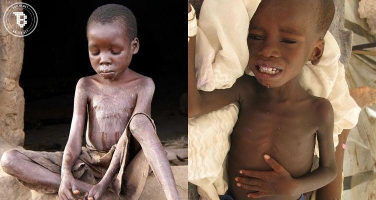 12 Foto anak kelaparan di Afrika ini dijamin bikin air matamu menetes!