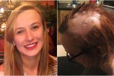 Gara-gara stress ujian, rambut gadis ini rontok dan harus digundul