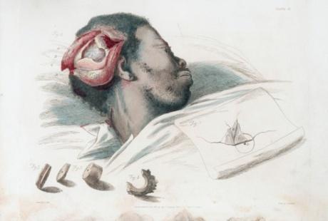 7 Pengobatan sadis bagi penderita gangguan jiwa zaman dulu, seram abis