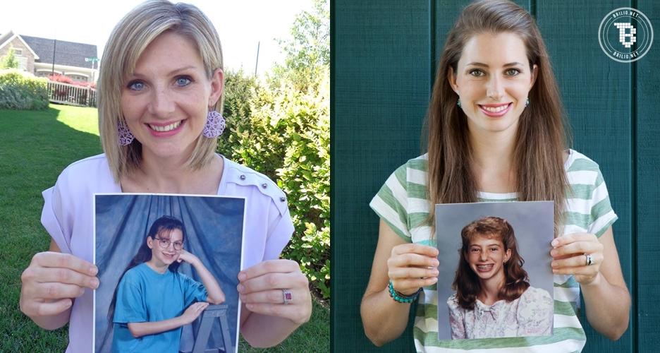 15 Gadis culun berkawat gigi berubah jadi wanita cantik, pangling?