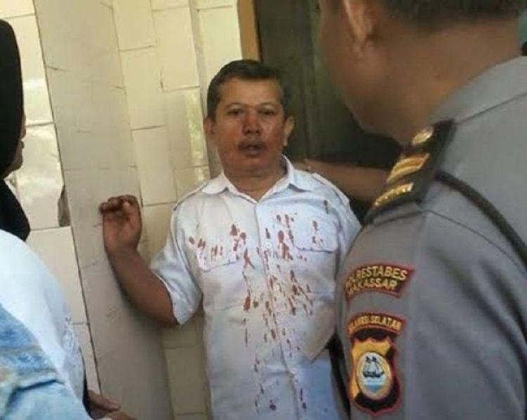 Guru korban pemukulan siswa & orangtua alami patah hidung