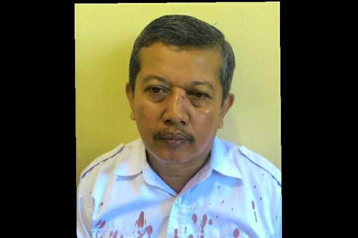 Terungkap kenapa Dasrul, guru SMKN 2 Makassar bisa berdarah-darah