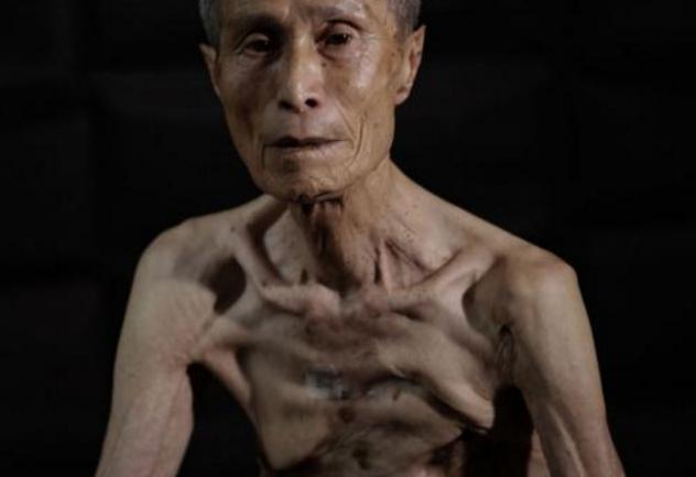 7 Kondisi korban bencana nuklir ini bikin menitikkan air mata