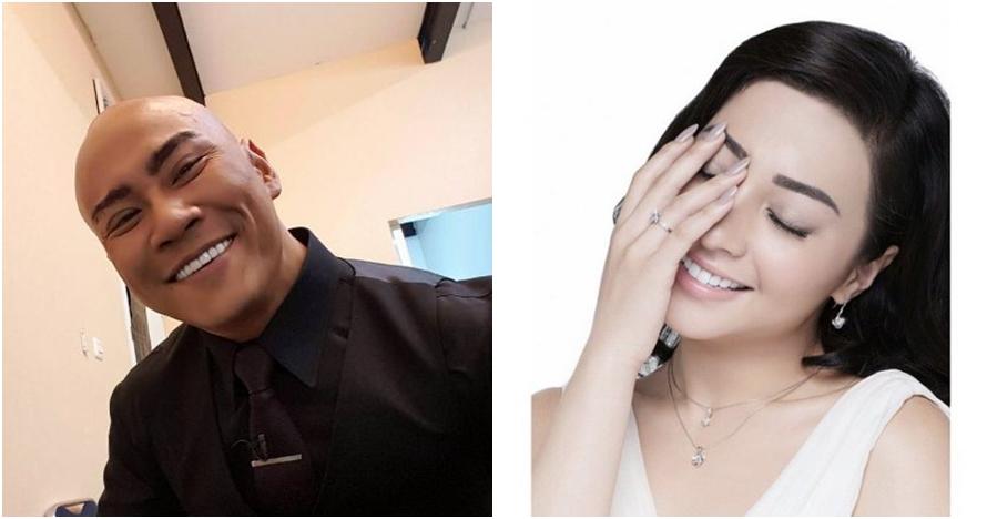 Demi tampil keren, 10 artis Indonesia ini putuskan untuk veneer gigi