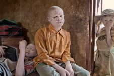Sering jadi tumbal, 17 potret orang albino di Afrika ini sungguh miris
