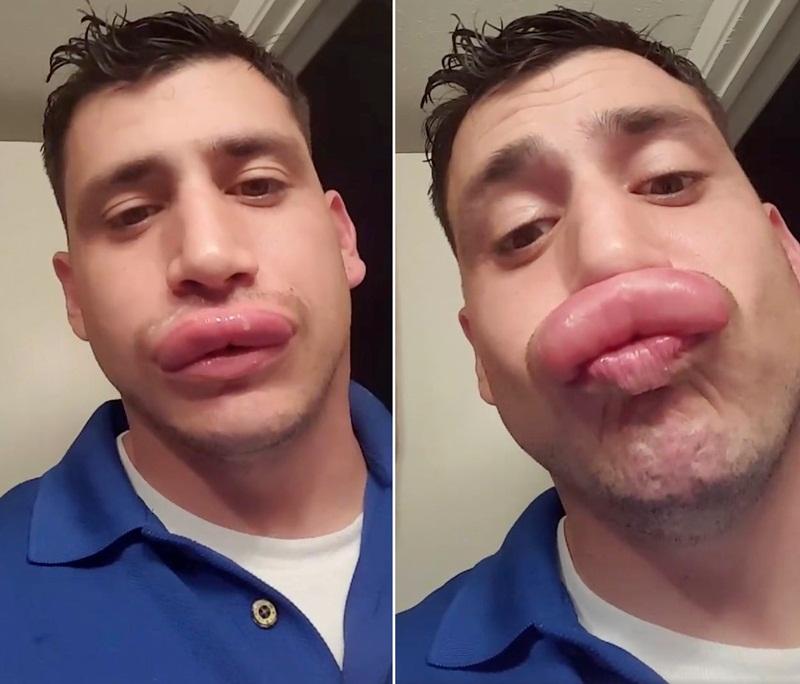 Disengat lebah, bibir cowok ini dianggap seksi mirip Kylie Jenner