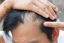 Dua per tiga cowok mulai botak di usia muda, ini penyebabnya