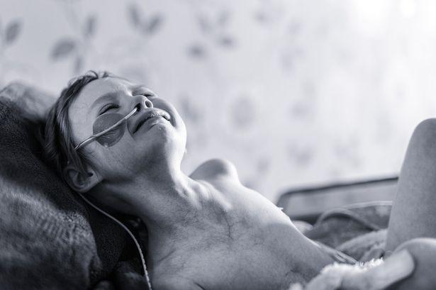 Potret bocah berjuang melawan kanker ini bikin menitikkan air mata