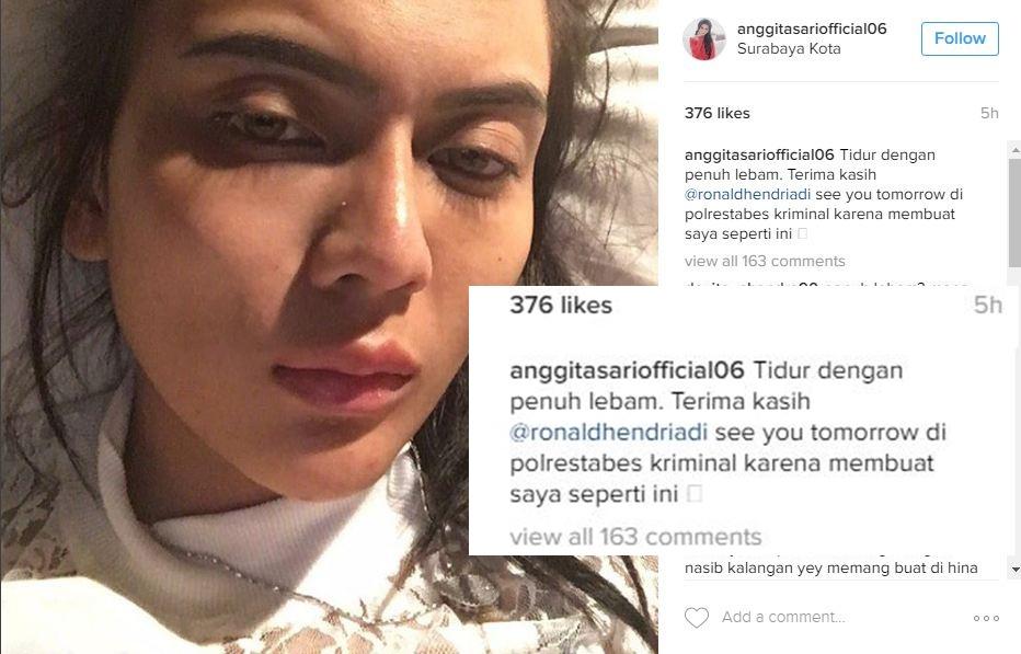 Akui lebam karena habis dipukul, Anggita Sari malah diledek netizen