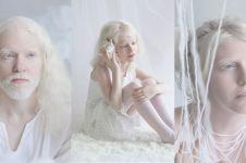11 Potret orang albino ini eksotis banget, indahnya bikin takjub