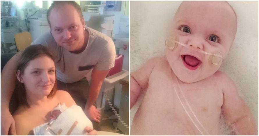 Perjuangan orangtua rawat bayi divonis umur pendek ini berbuah manis
