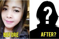 Mengira sakit gigi biasa, ternyata gadis ini terkena kanker di rahang