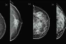 Teknologi terbaru ultrasonik lebih akurat deteksi kanker payudara