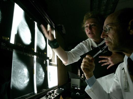 Ini alasan pemeriksaan mammogram tak pandang usia