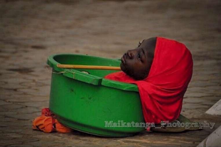 Akhir hayat gadis tak berlengan yang hidup di ember ini bikin mewek