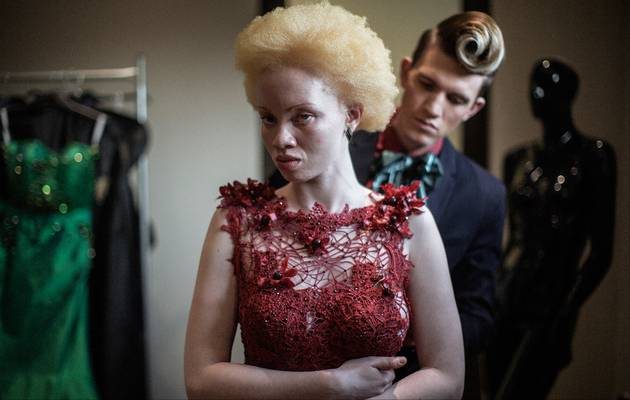 Thando Hopa model pengacara albino © 2017 berbagai sumber