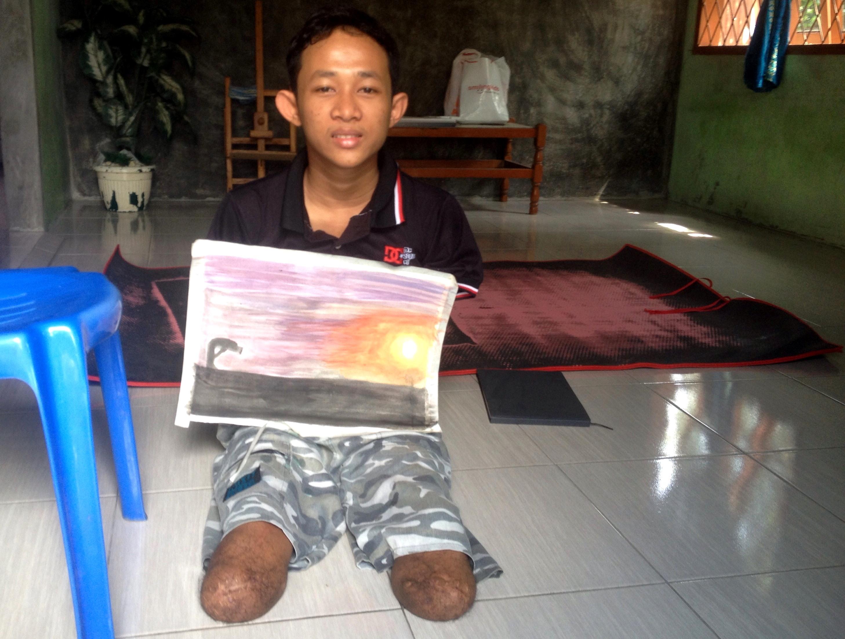 Kehilangan tangan dan kaki, remaja ini bangkit dan menjadi pelukis