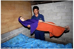 Kisah nestapa Sulami, idap penyakit langka tubuhnya kaku bak manekin