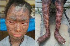 Terkena penyakit langka, gadis ini berganti kulit setiap dua bulan
