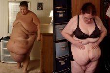 Kisah haru pengidap obesitas, pertaruhkan nyawa demi kembali normal